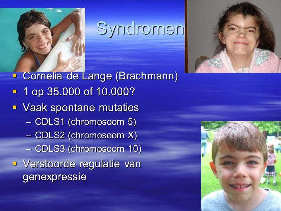 Syndromen Cornelia de Lange (Brachmann) 1 op 35.000 of 10.000