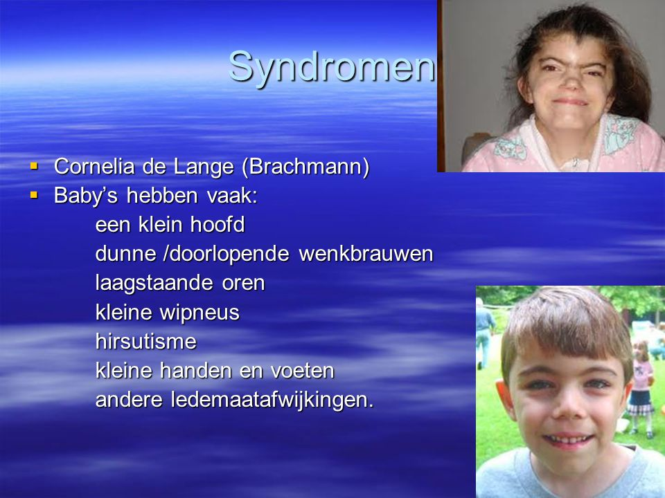Syndromen Cornelia de Lange (Brachmann) Baby's hebben vaak: