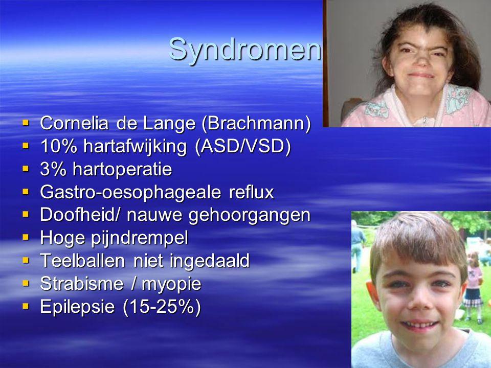 Syndromen Cornelia de Lange (Brachmann) 10% hartafwijking (ASD/VSD)