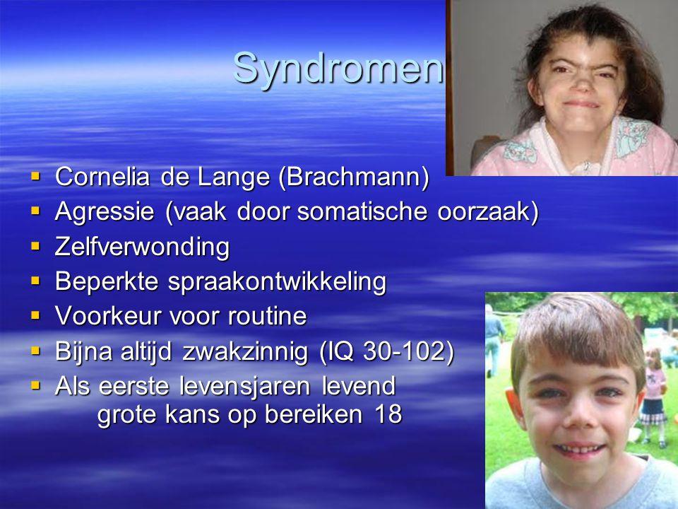 Syndromen Cornelia de Lange (Brachmann)