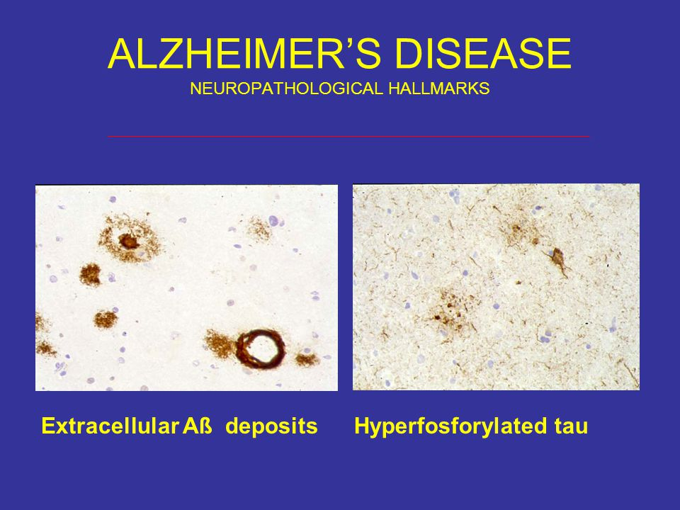 ALZHEIMER'S DISEASE NEUROPATHOLOGICAL HALLMARKS