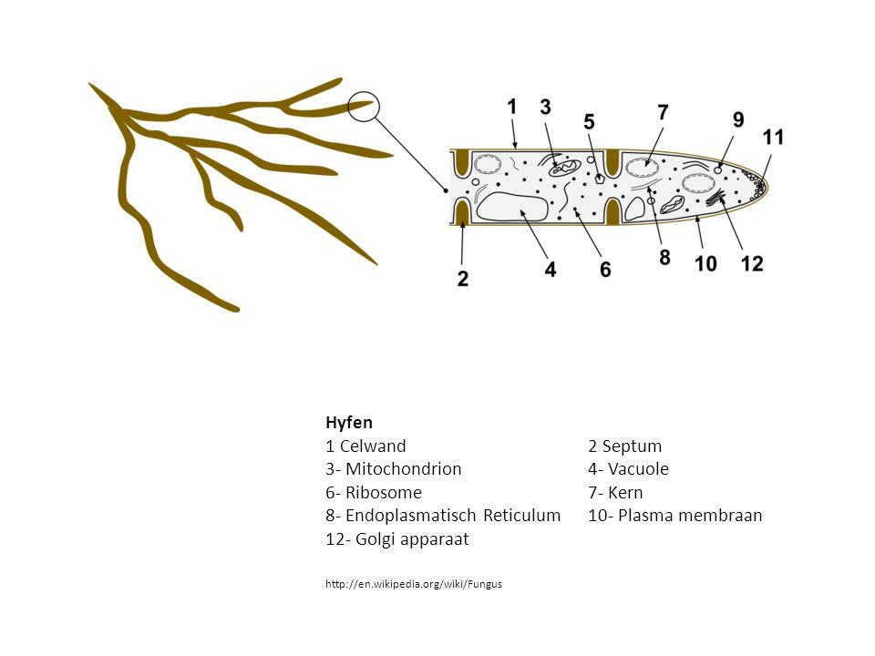 3- Mitochondrion 4- Vacuole 6- Ribosome 7- Kern