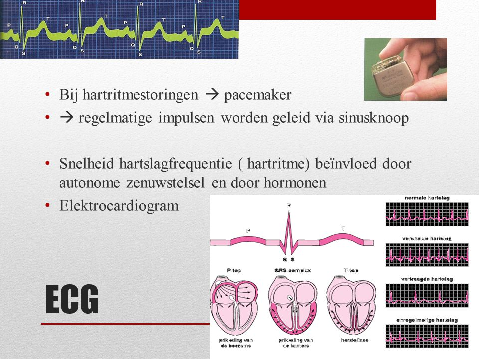 ECG Bij hartritmestoringen  pacemaker