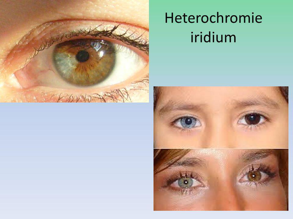Heterochromie iridium