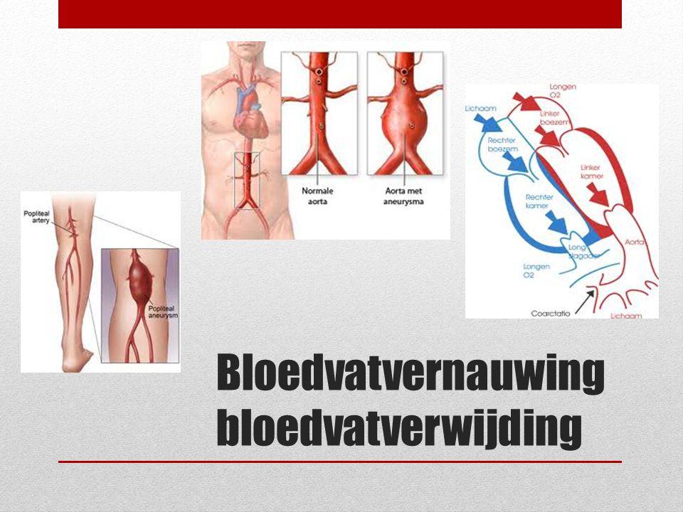 Bloedvatvernauwing bloedvatverwijding