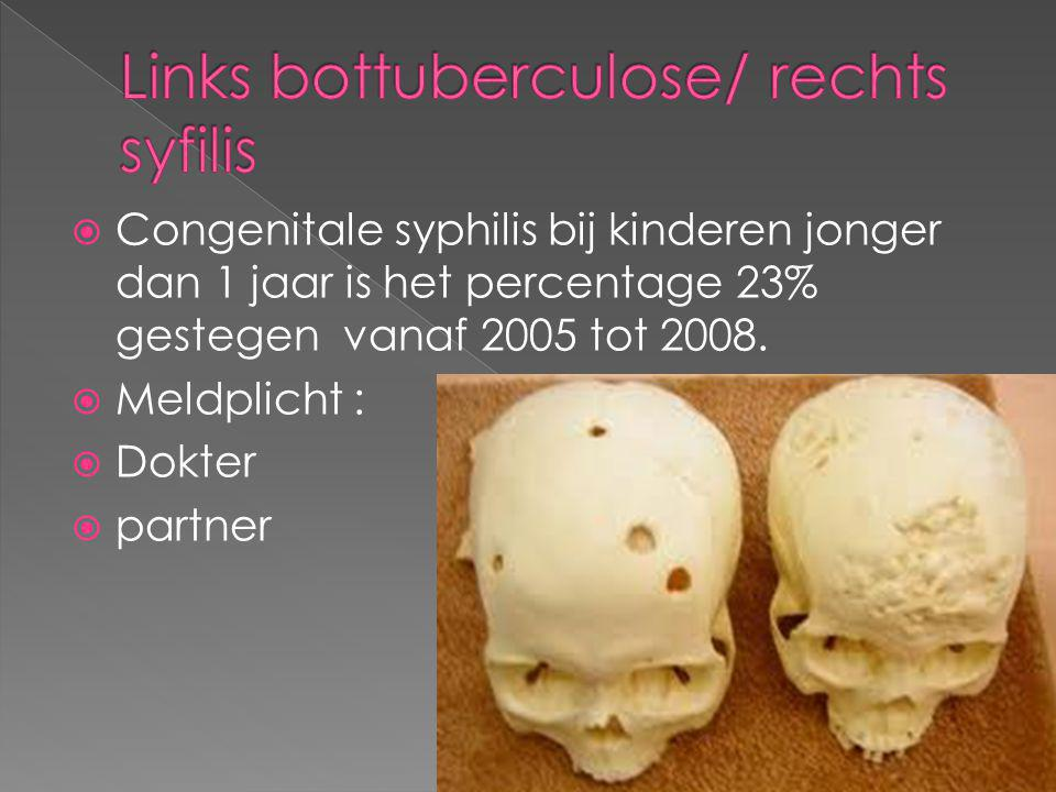 Links bottuberculose/ rechts syfilis
