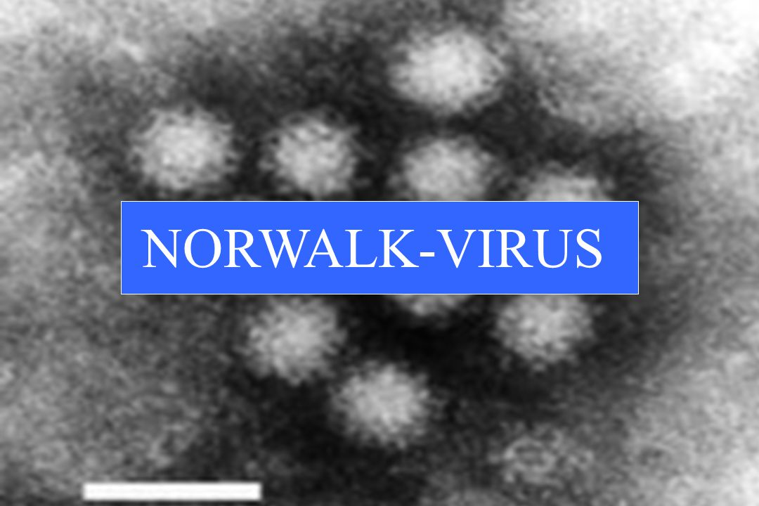 NORWALK-VIRUS
