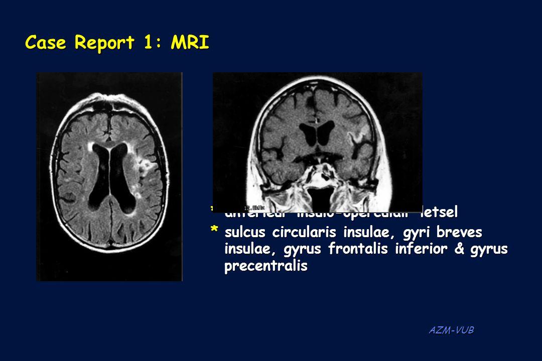 Case Report 1: MRI * anterieur insulo-operculair letsel