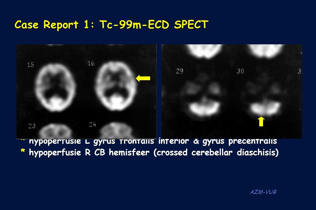 Case Report 1: Tc-99m-ECD SPECT