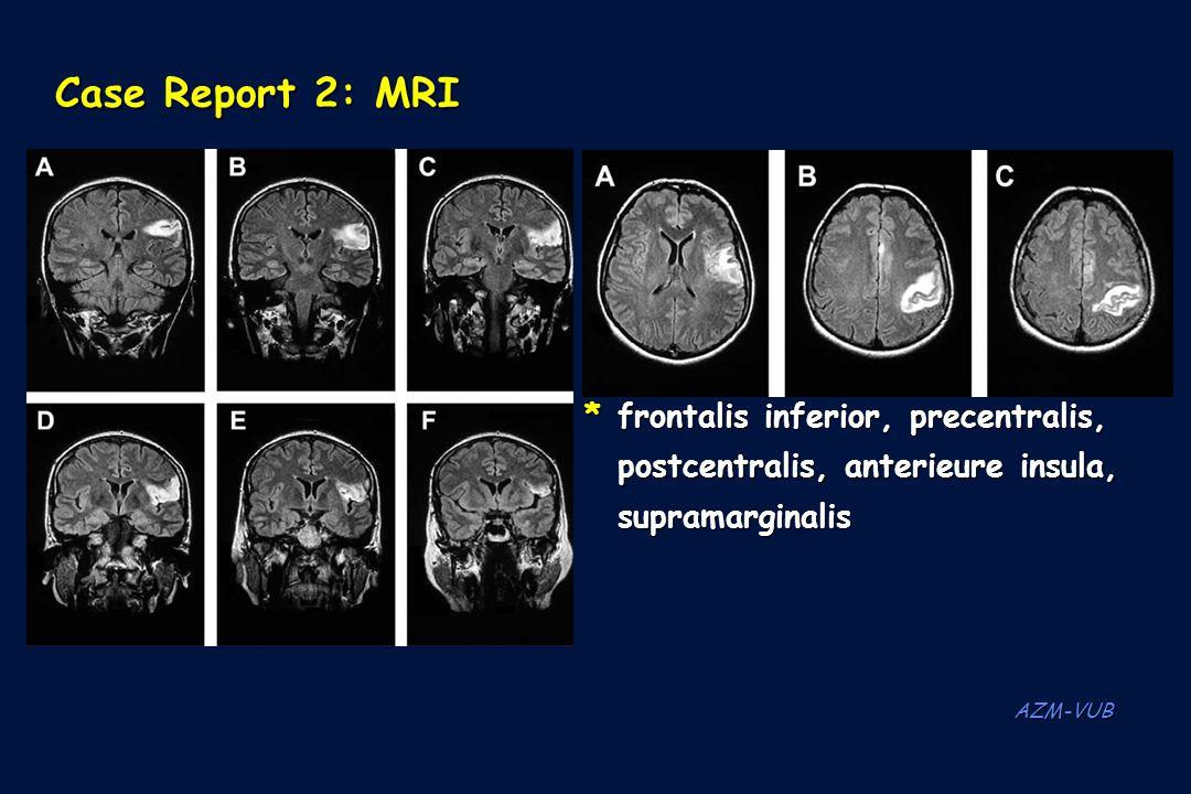 Case Report 2: MRI * frontalis inferior, precentralis, postcentralis, anterieure insula, supramarginalis.