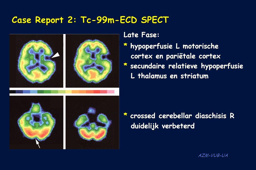 Case Report 2: Tc-99m-ECD SPECT