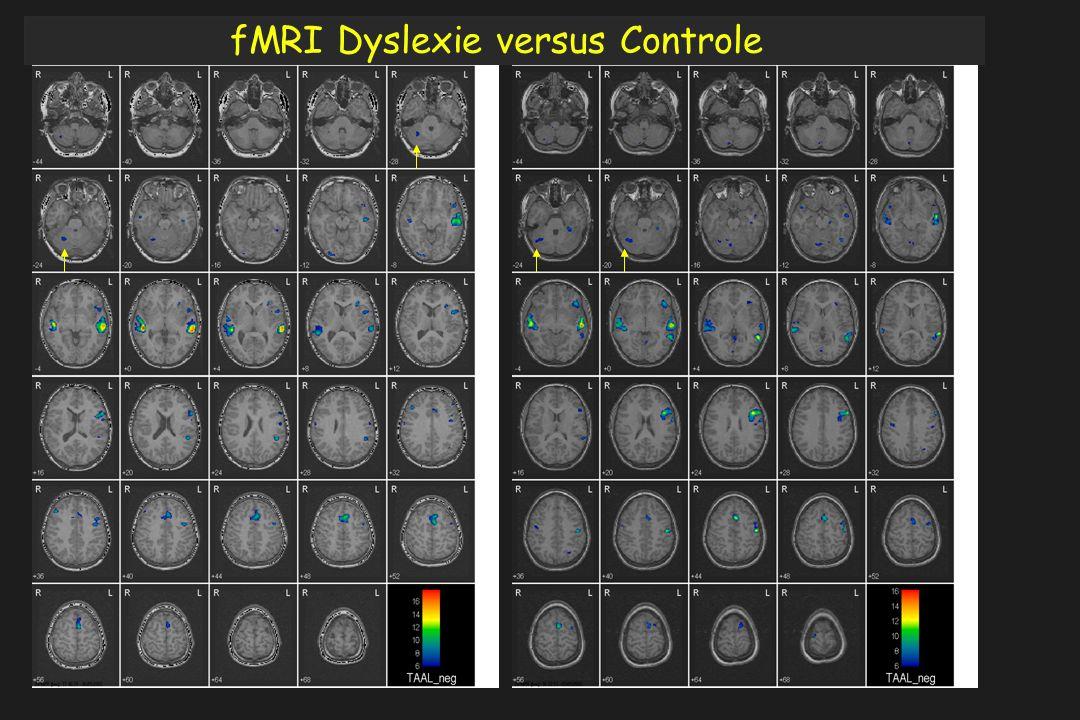 fMRI Dyslexie versus Controle