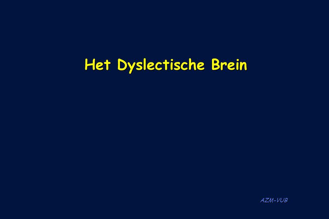 Het Dyslectische Brein