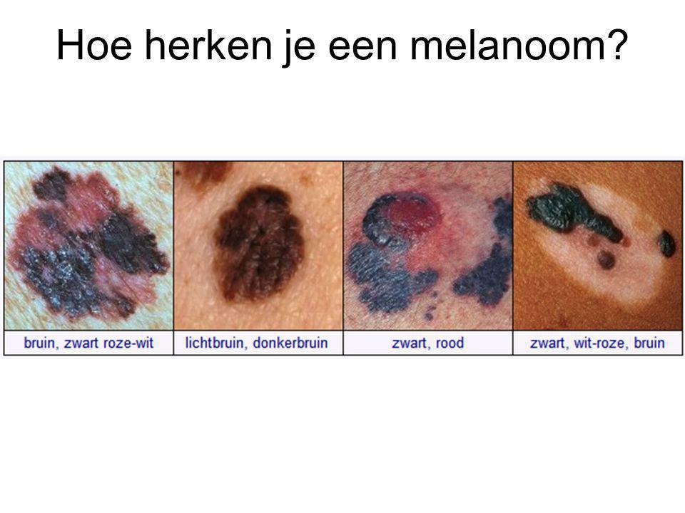 Hoe herken je een melanoom