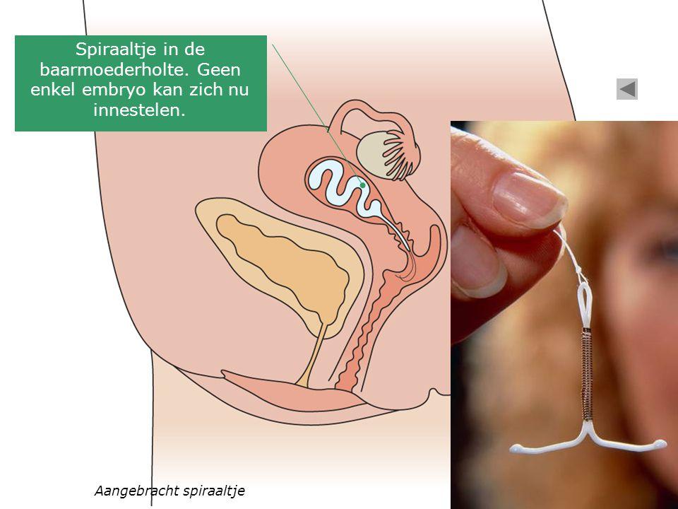 Spiraaltje in de baarmoederholte