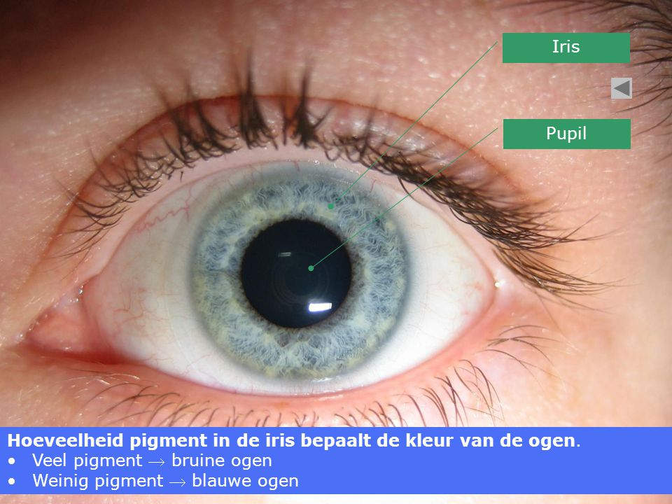Iris Pupil. Hoeveelheid pigment in de iris bepaalt de kleur van de ogen. Veel pigment  bruine ogen.