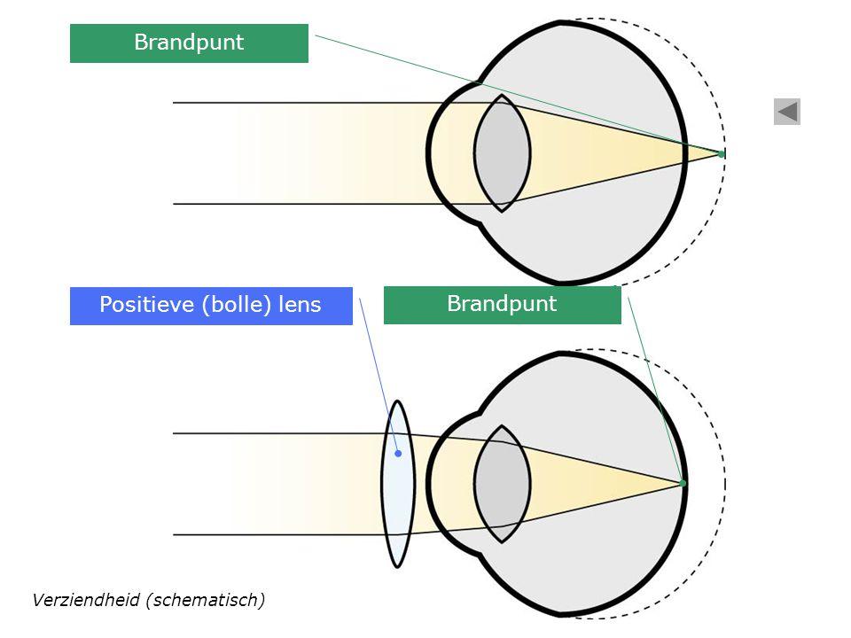 Positieve (bolle) lens