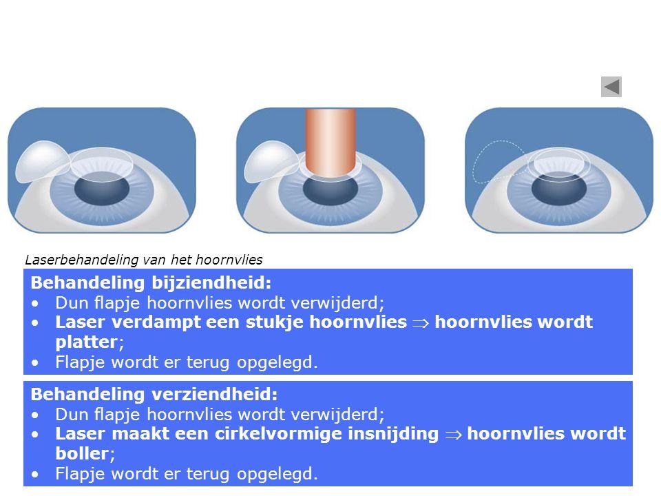 Behandeling bijziendheid: Dun flapje hoornvlies wordt verwijderd;