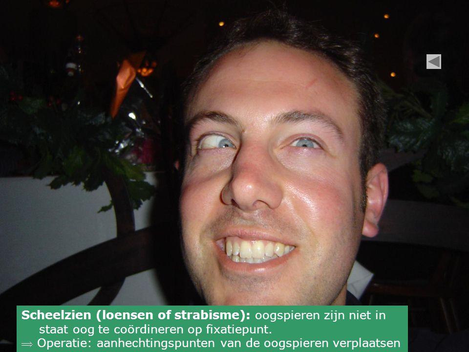 Scheelzien (loensen of strabisme): oogspieren zijn niet in staat oog te coördineren op fixatiepunt.