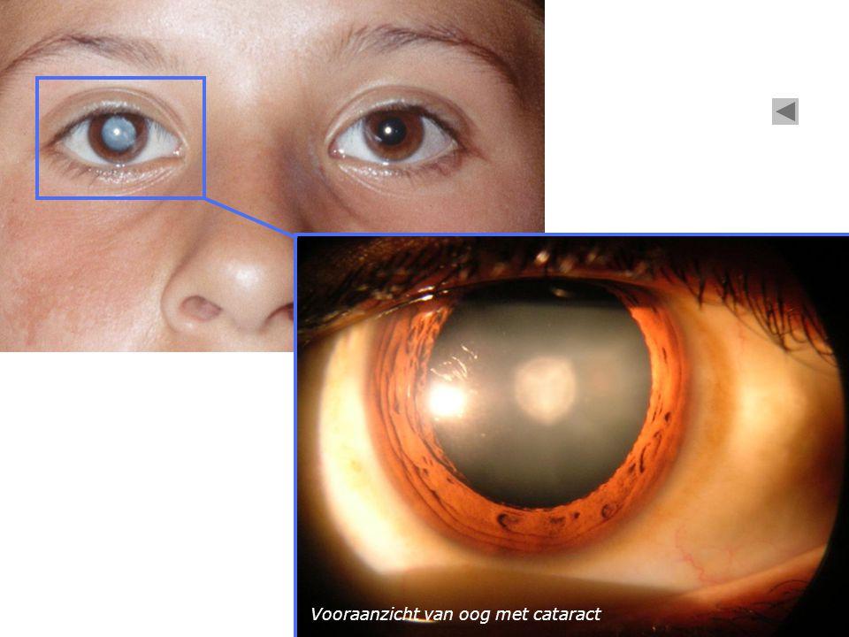 Vooraanzicht van oog met cataract