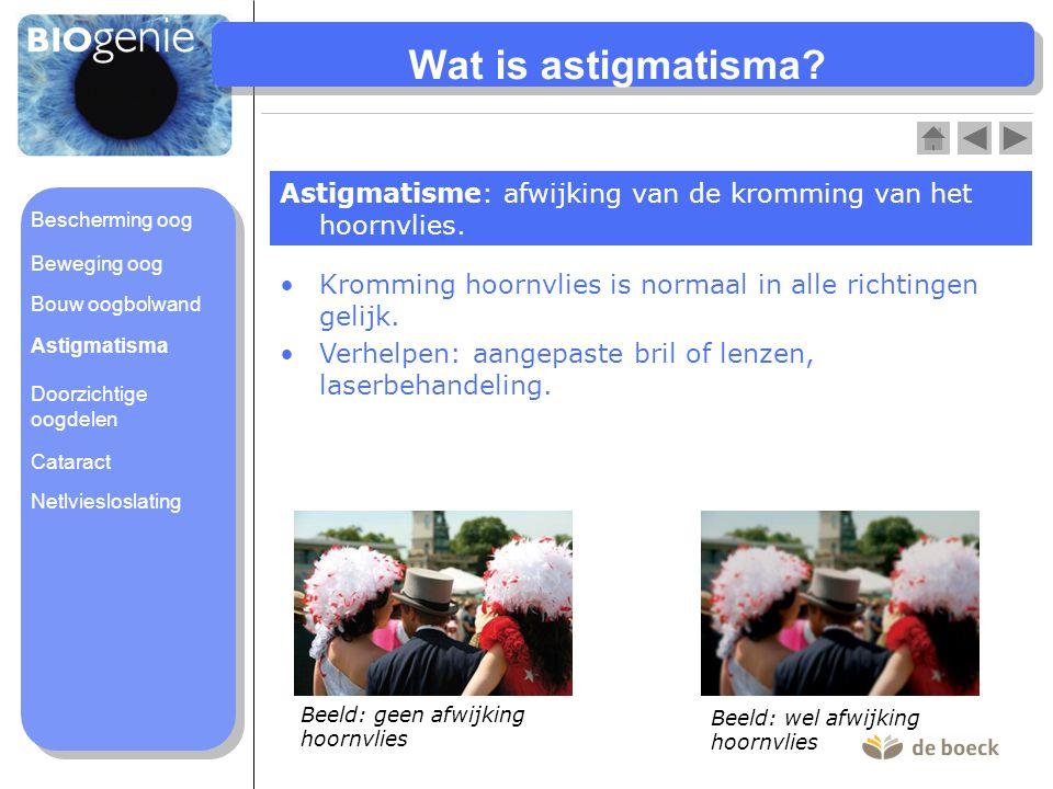 Wat is astigmatisma Astigmatisme: afwijking van de kromming van het hoornvlies. Bescherming oog. Beweging oog.