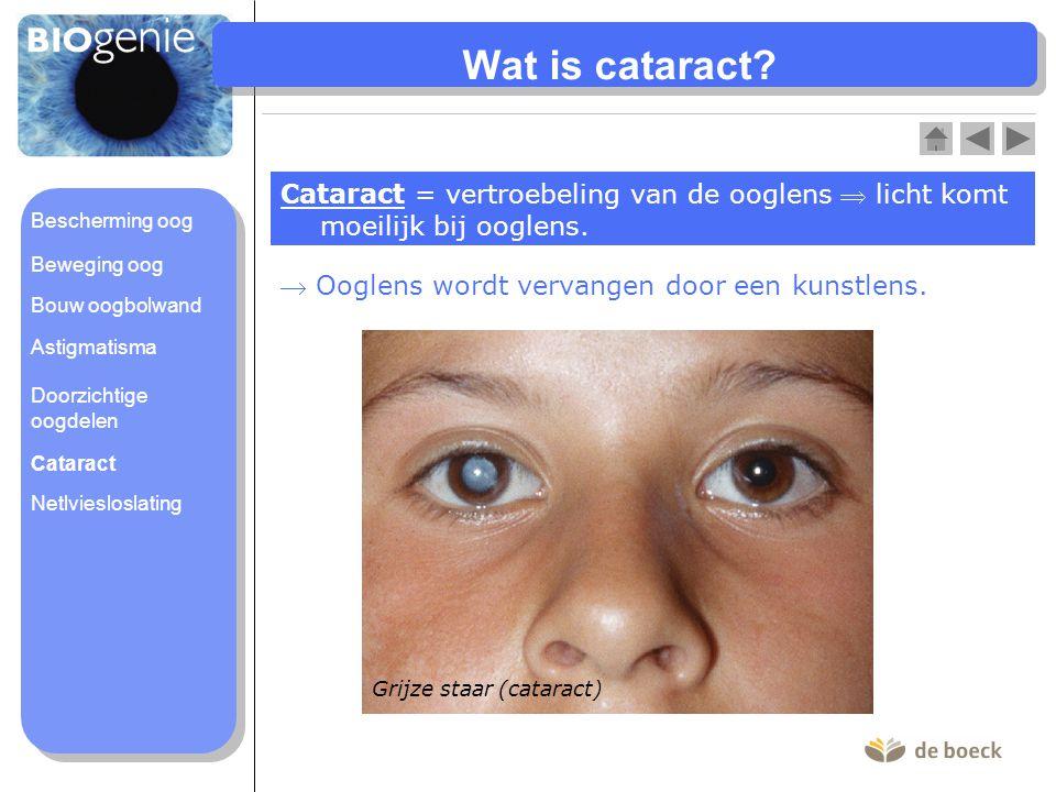 Wat is cataract Cataract = vertroebeling van de ooglens  licht komt moeilijk bij ooglens. Bescherming oog.