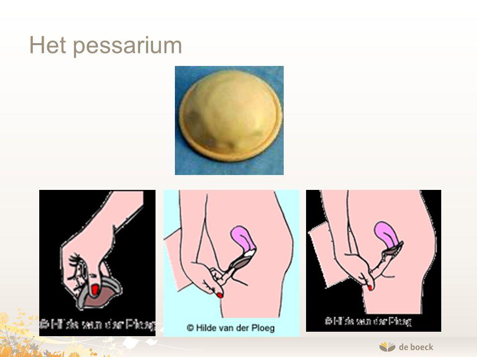 Het pessarium