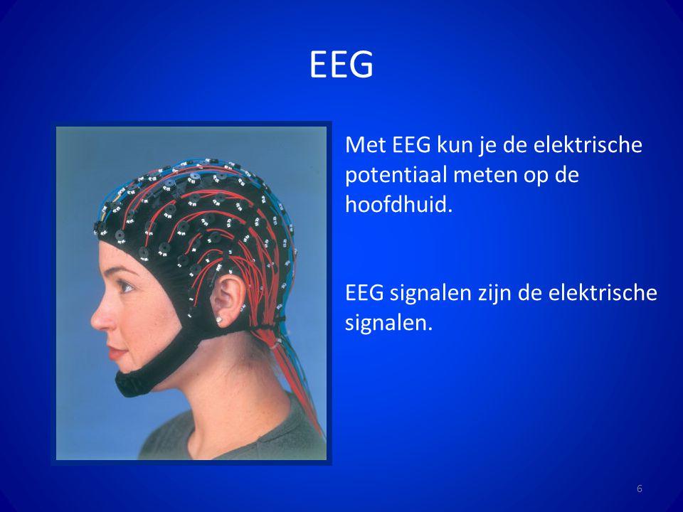 EEG Met EEG kun je de elektrische potentiaal meten op de hoofdhuid.