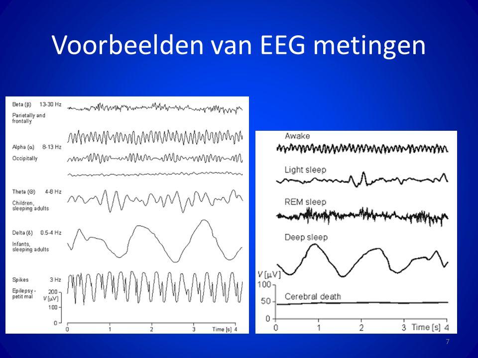 Voorbeelden van EEG metingen