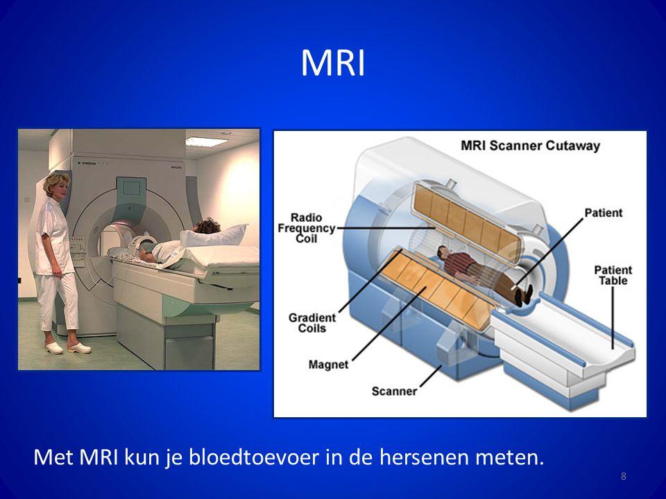 MRI Met MRI kun je bloedtoevoer in de hersenen meten.