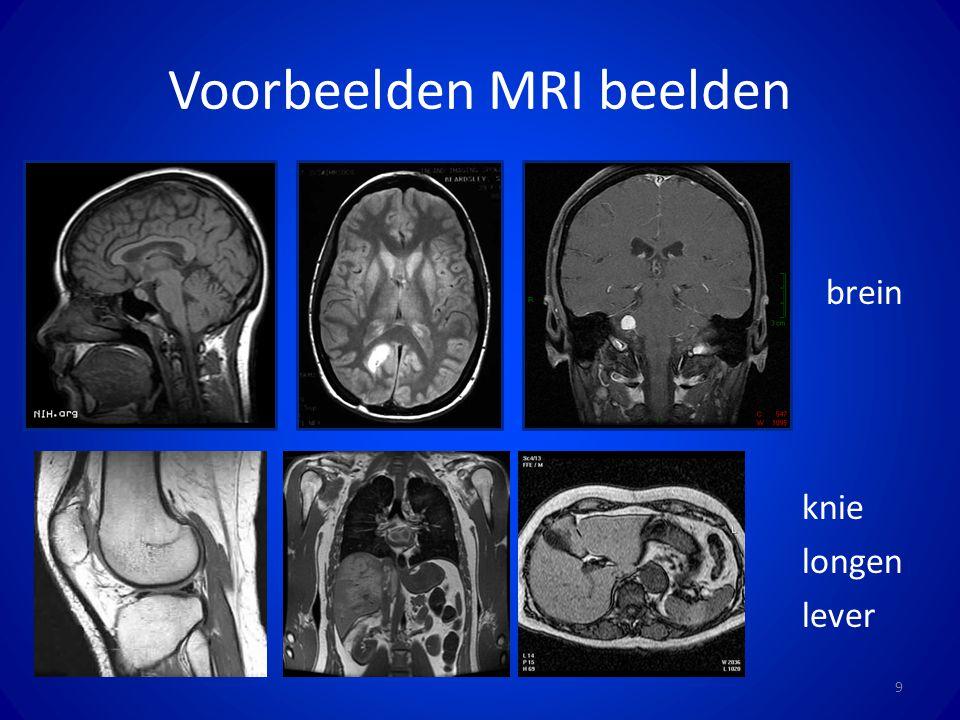 Voorbeelden MRI beelden
