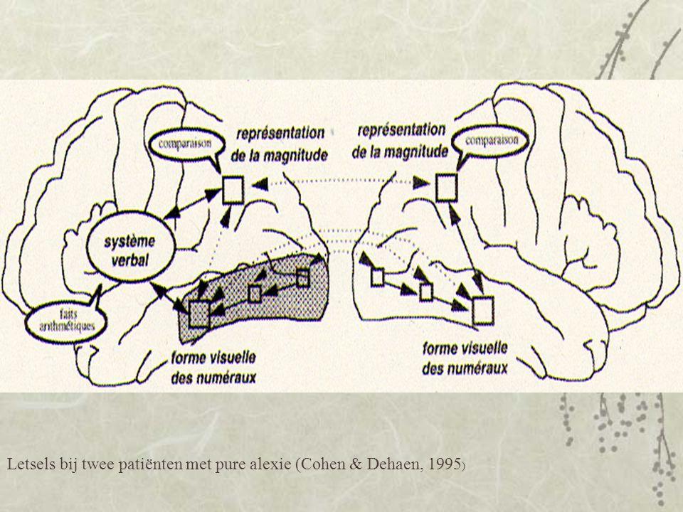 Letsels bij twee patiënten met pure alexie (Cohen & Dehaen, 1995)