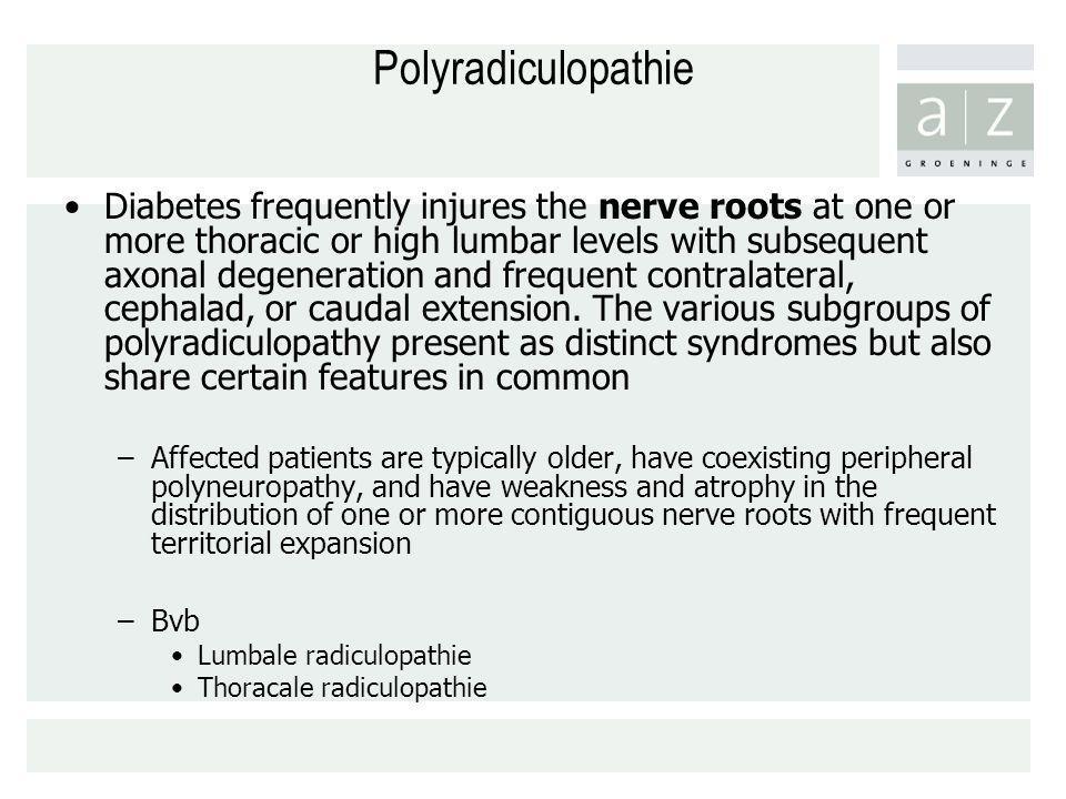 Polyradiculopathie