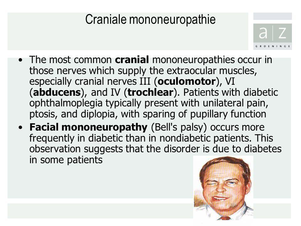 Craniale mononeuropathie