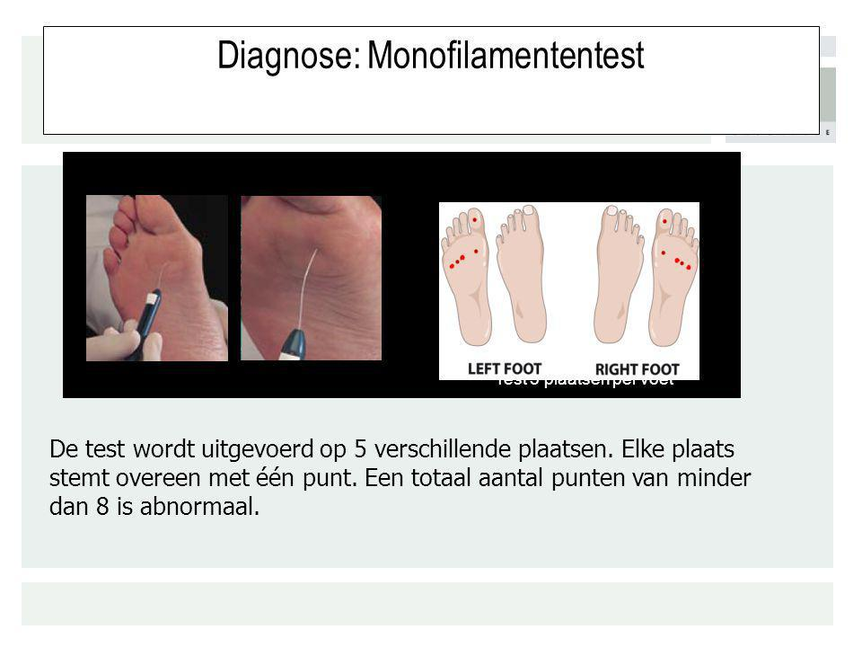 Diagnose: Monofilamententest