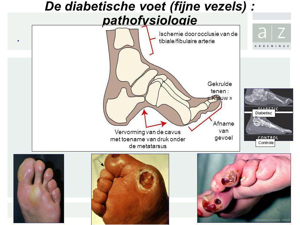 De diabetische voet (fijne vezels) : pathofysiologie