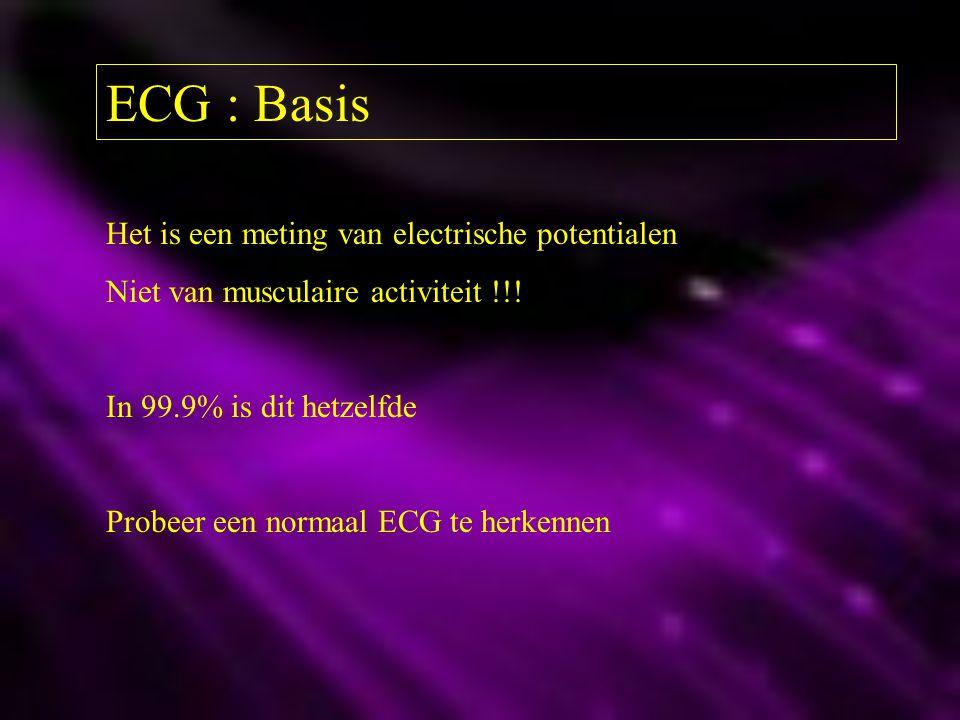 ECG : Basis Het is een meting van electrische potentialen