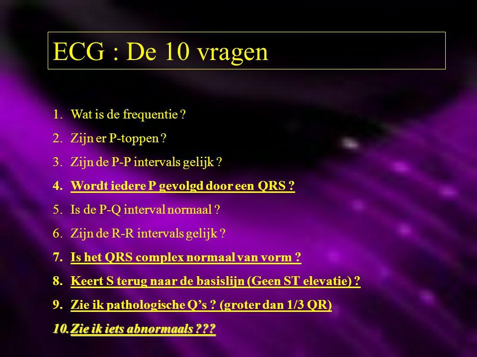 ECG : De 10 vragen Wat is de frequentie Zijn er P-toppen
