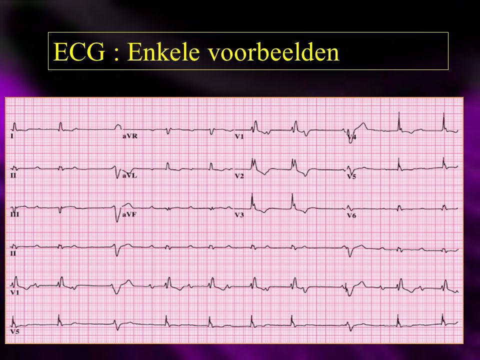 ECG : Enkele voorbeelden