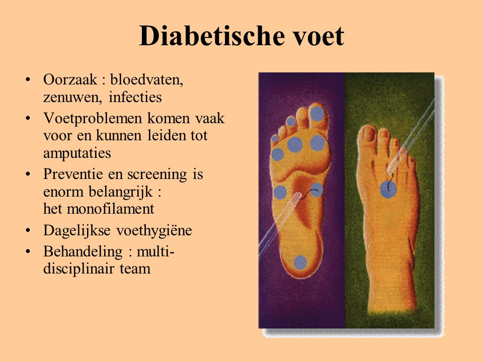 Diabetische voet Oorzaak : bloedvaten, zenuwen, infecties