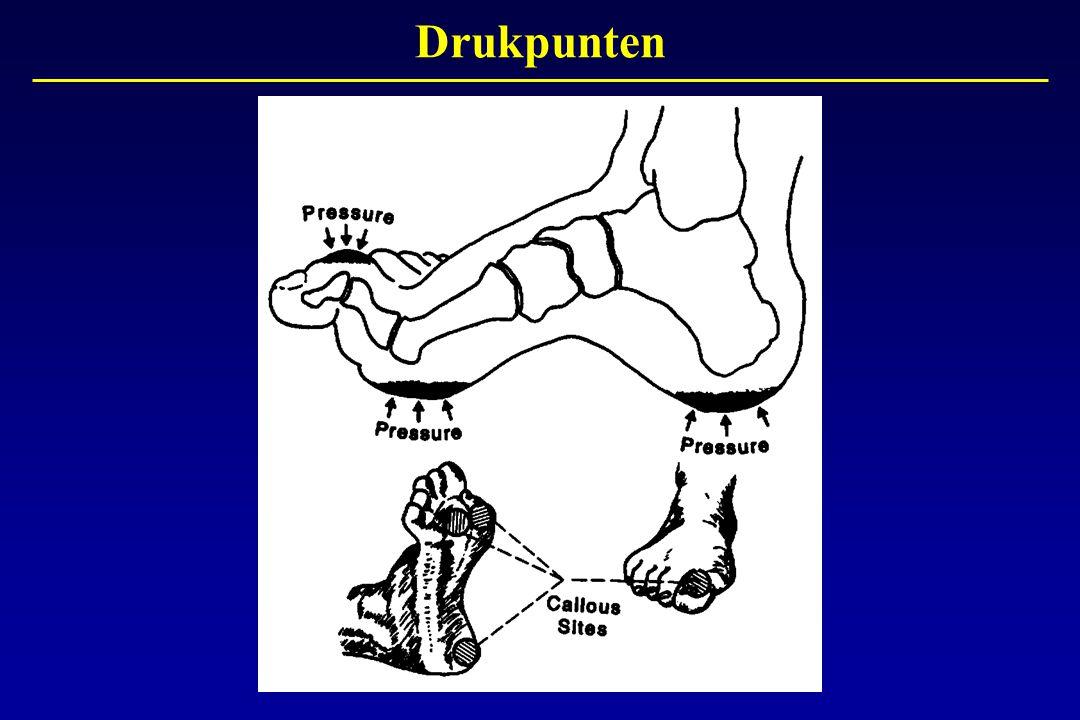 Drukpunten Door het verdwijnen van het gevoel in de voeten door neuropathie verdwijnt ook geleidelijk het zo belangrijke pijnalarm.