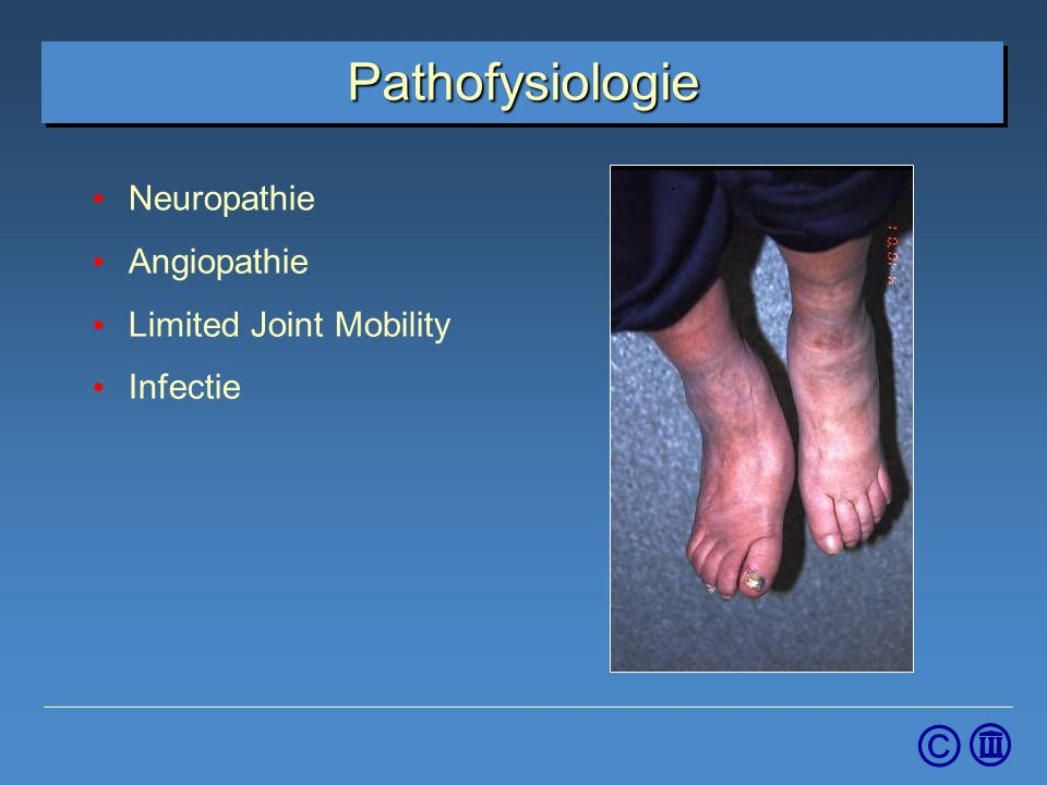 Pathofysiologie Neuropathie Angiopathie Limited Joint Mobility