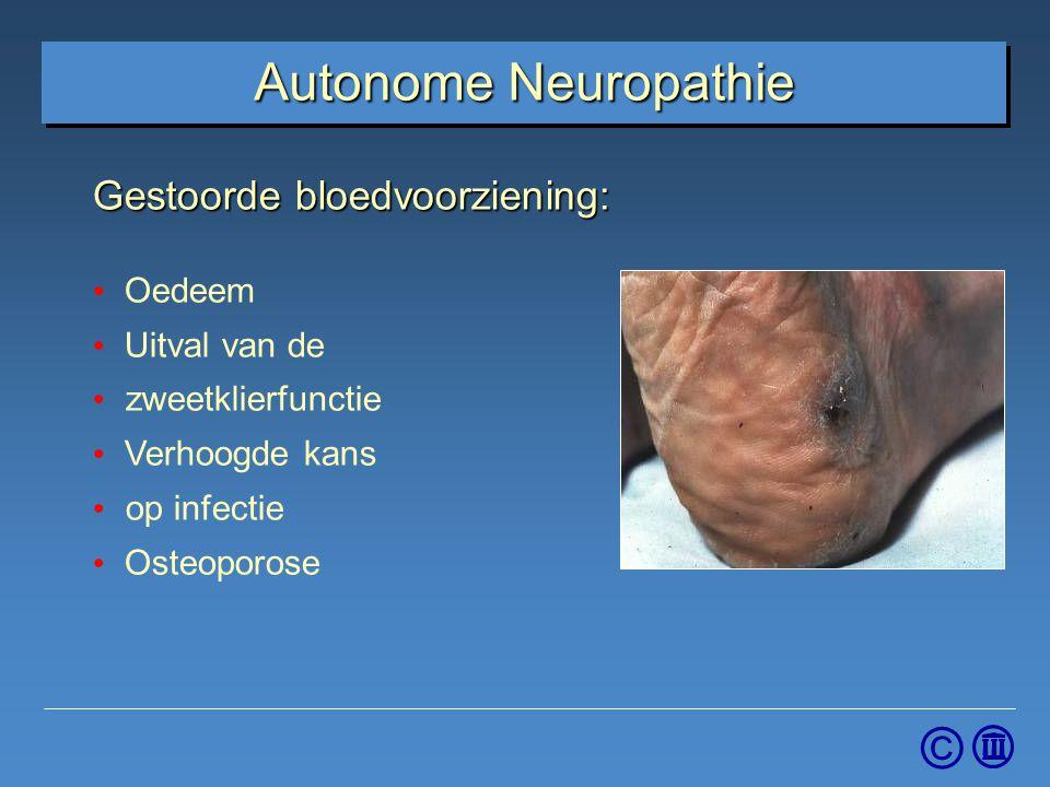 Autonome Neuropathie Gestoorde bloedvoorziening: Oedeem Uitval van de