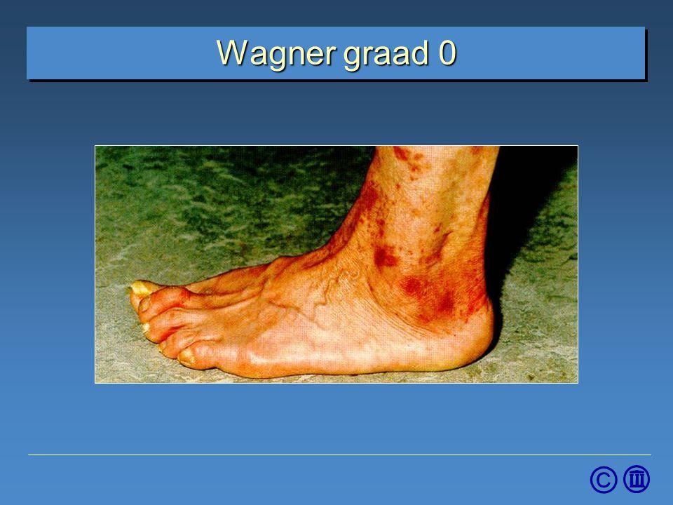 4-4-2017 Wagner graad 0. Graad 0: Geen wond, intacte huid, mogelijke botdeformatie. • Preventieve maatregelen.