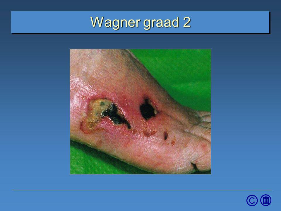 4-4-2017 Wagner graad 2. Graad 2: Diep ulcus dringt door tot pees, bot of gewricht.
