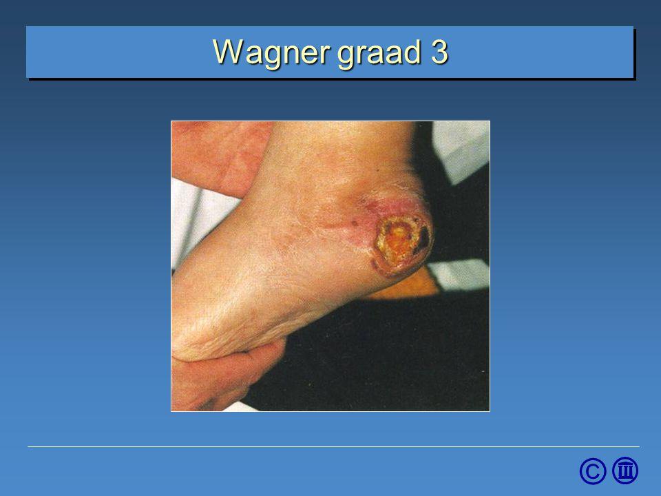 4-4-2017 Wagner graad 3. Graad 3: Diep ulcus met osteomyelitis of een abces.