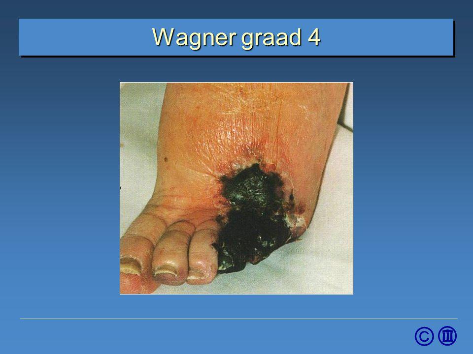4-4-2017 Wagner graad 4. Graad 4: Lokaal gangreen van de voorvoet of tenen, wond kan droog of nat zijn.