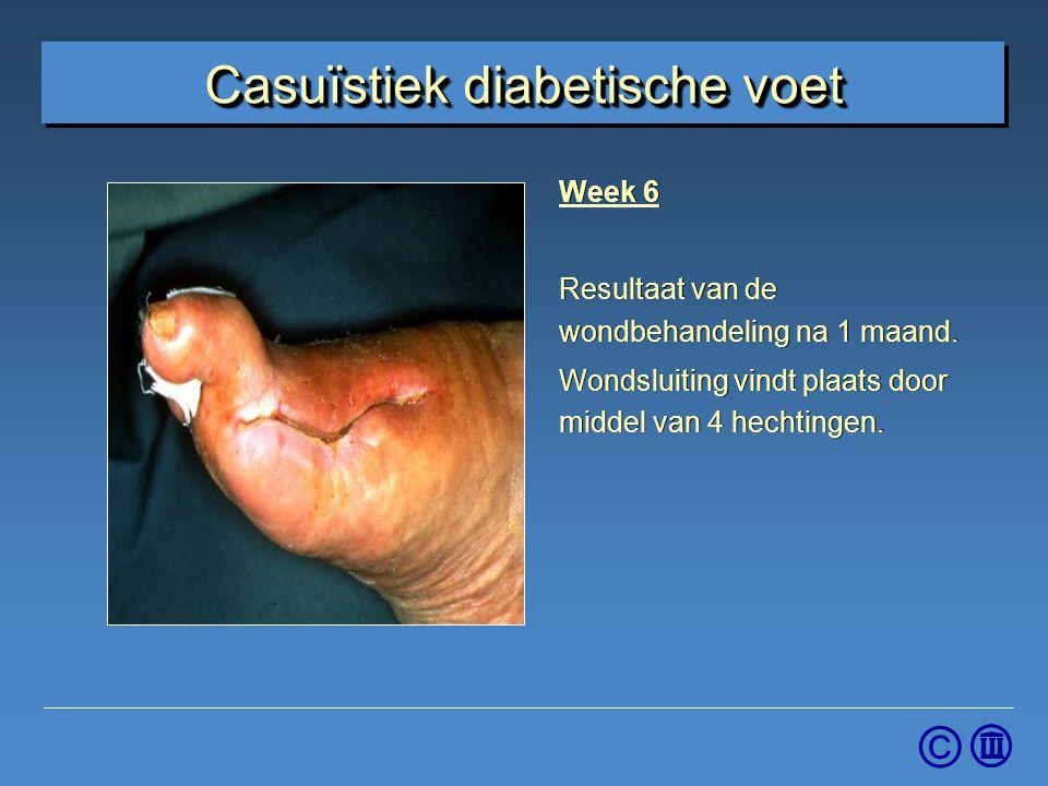Casuïstiek diabetische voet