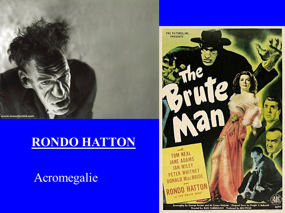RONDO HATTON Acromegalie