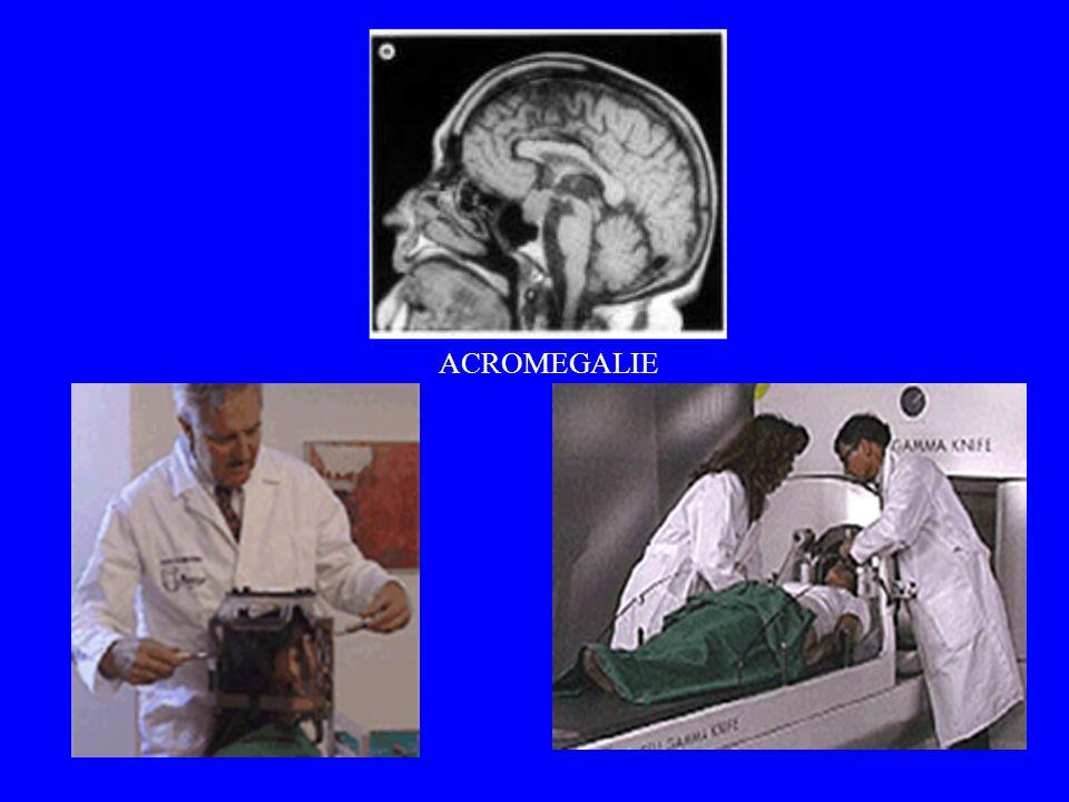 ACROMEGALIE -GAMMAKNIFE